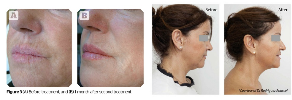 Before and after Profhilo anti-aging treatement