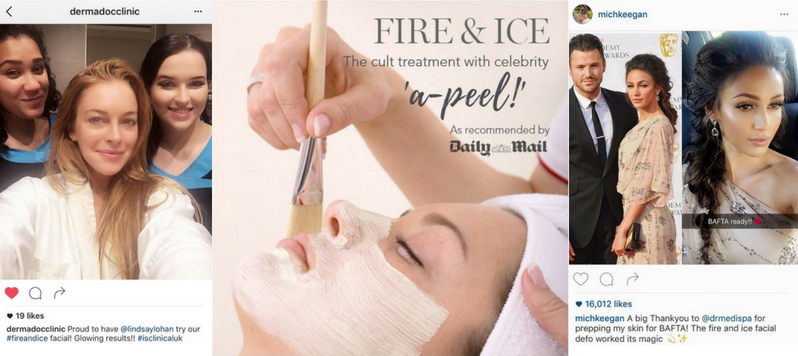 Fire and Ice Facial treatment Prestbury Cheshire